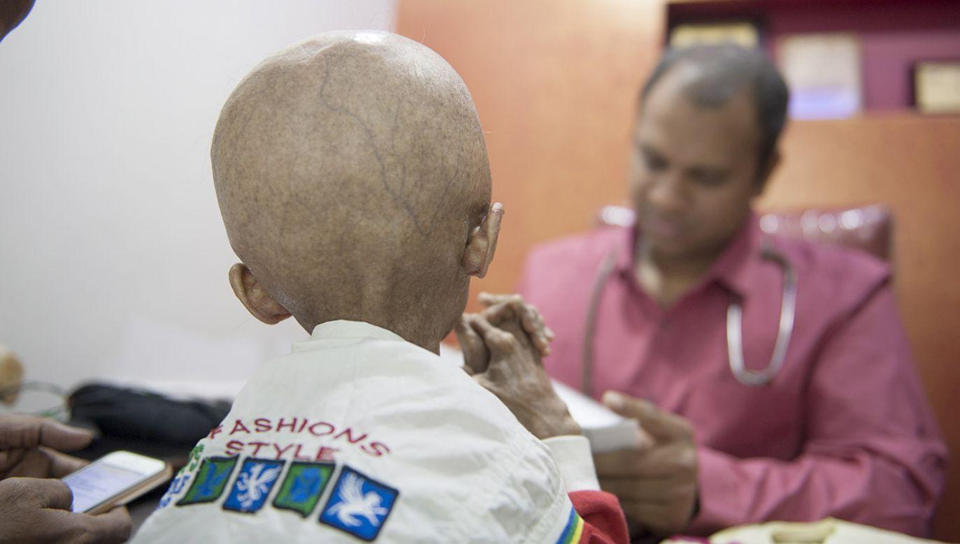 Ofiary progerii nie dożywają zazwyczaj 20 roku życia (fot. Haziq Qadri / Barcroft India / Barcroft Media via Getty Images, zdjęcie ilustracyjne)