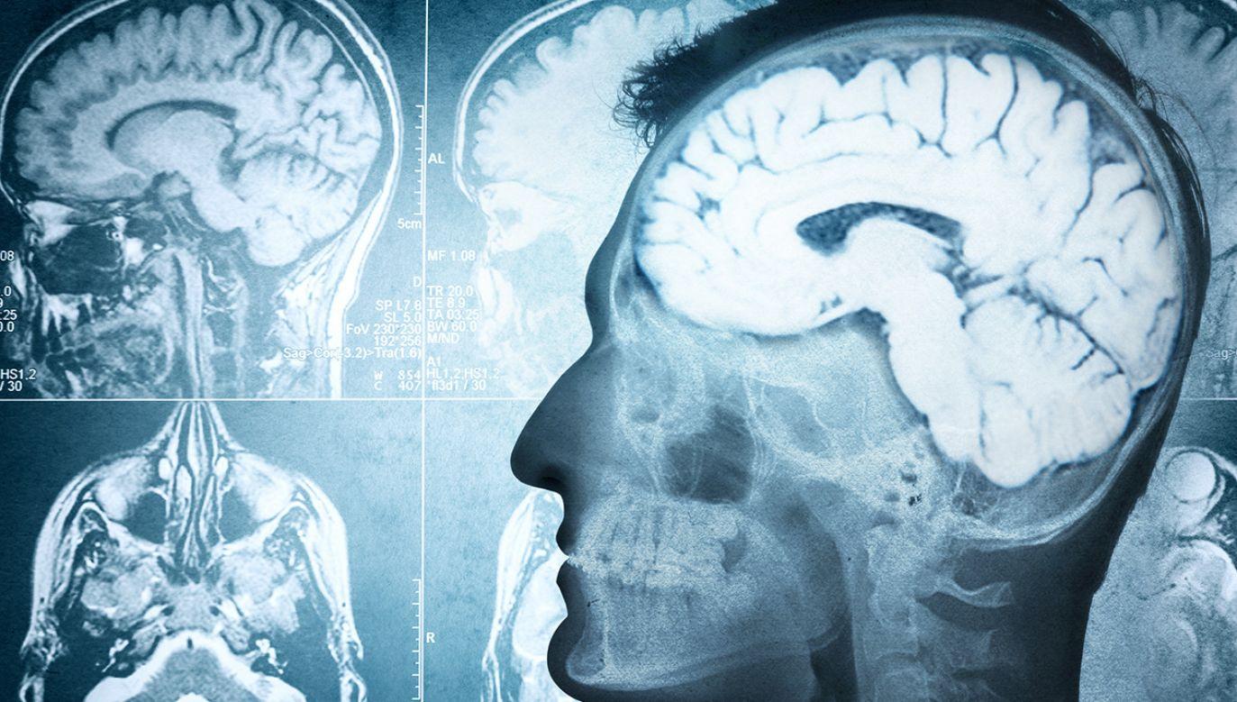 M.in. badania wykazały, że szczur nie ma mózgu (fot. Shutterstock/Triff)