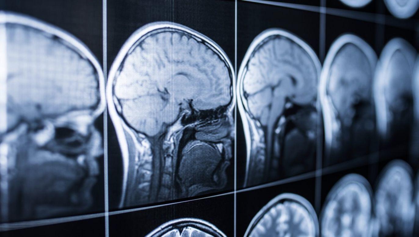 Najszybciej umysł rozwija się do 20. roku życia (fot. Shutterstock/Jalisko)