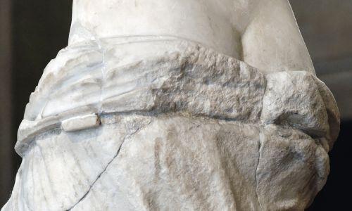Gdy Wenus z Milo trafiła do pracowni renowacji rzeźby w Paryżu, konserwator Bernard Lange odkrył, że tylko szyja jest nienaruszona. Z lewego ramienia nie zostało nic, prawe złamało się na środku bicepsa. Brakowało również lewej stopy, części nosa, fragmentów uszu, końcówki lewej piersi, dużego palca prawej stopy i części draperii. Lange zauważył też znaczące złamania i pęknięcia w okolicy bioder, ud i pośladków. Fot. VCG Wilson / Corbis via Getty Images