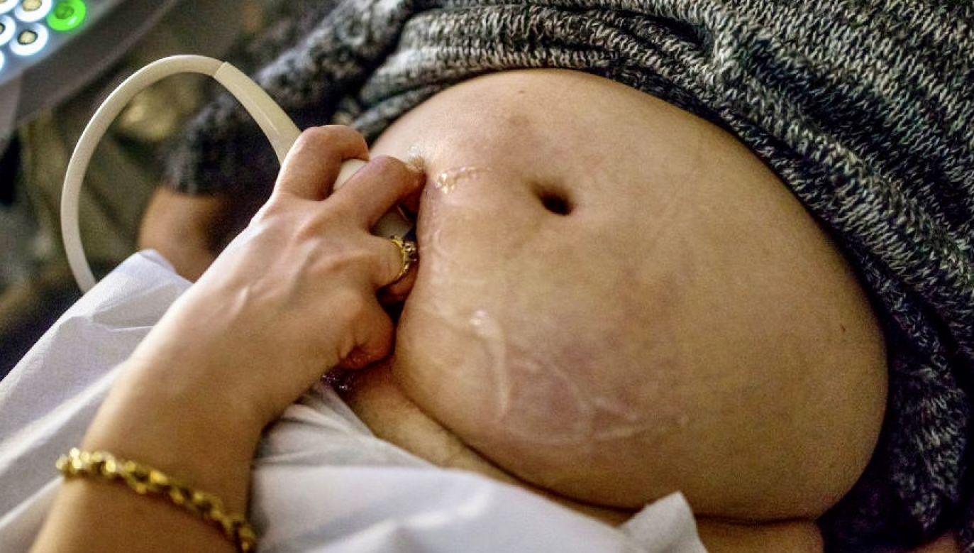 W związku z pojawiającymi się komentarzami dotyczącymi śmierci pacjentki w ciąży, Ostrzeszowskie Centrum Zdrowia wydało komunikat w sprawie (fot. Jonas Gratzer/LightRocket via Getty Images, zdjęcie ilustracyjne)