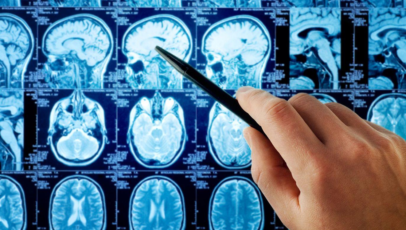 Elektroprzędza bronią przeciw rakowi mózgu (fot. Shutterstock/ SvedOliver)