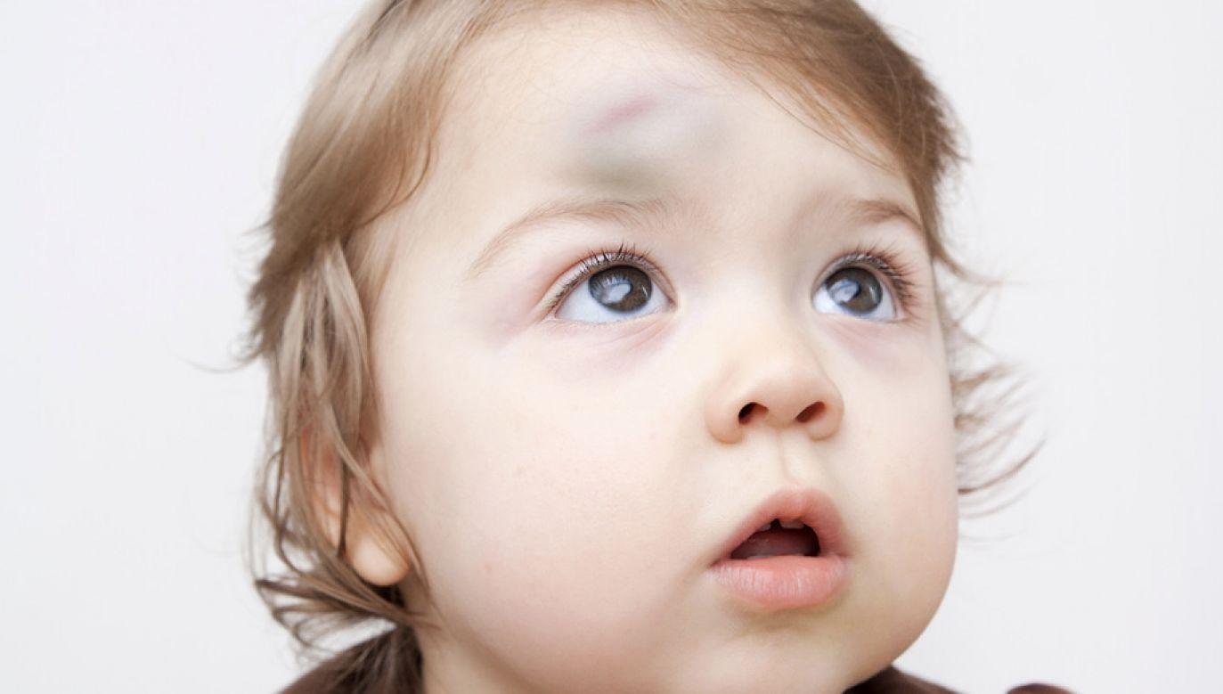 """""""Dziecko miało wyraźne ślady pobicia""""  (fot. Shutterstock/malven)"""